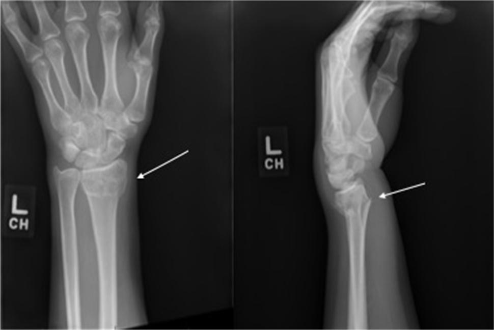 wrist-fractures.jpg