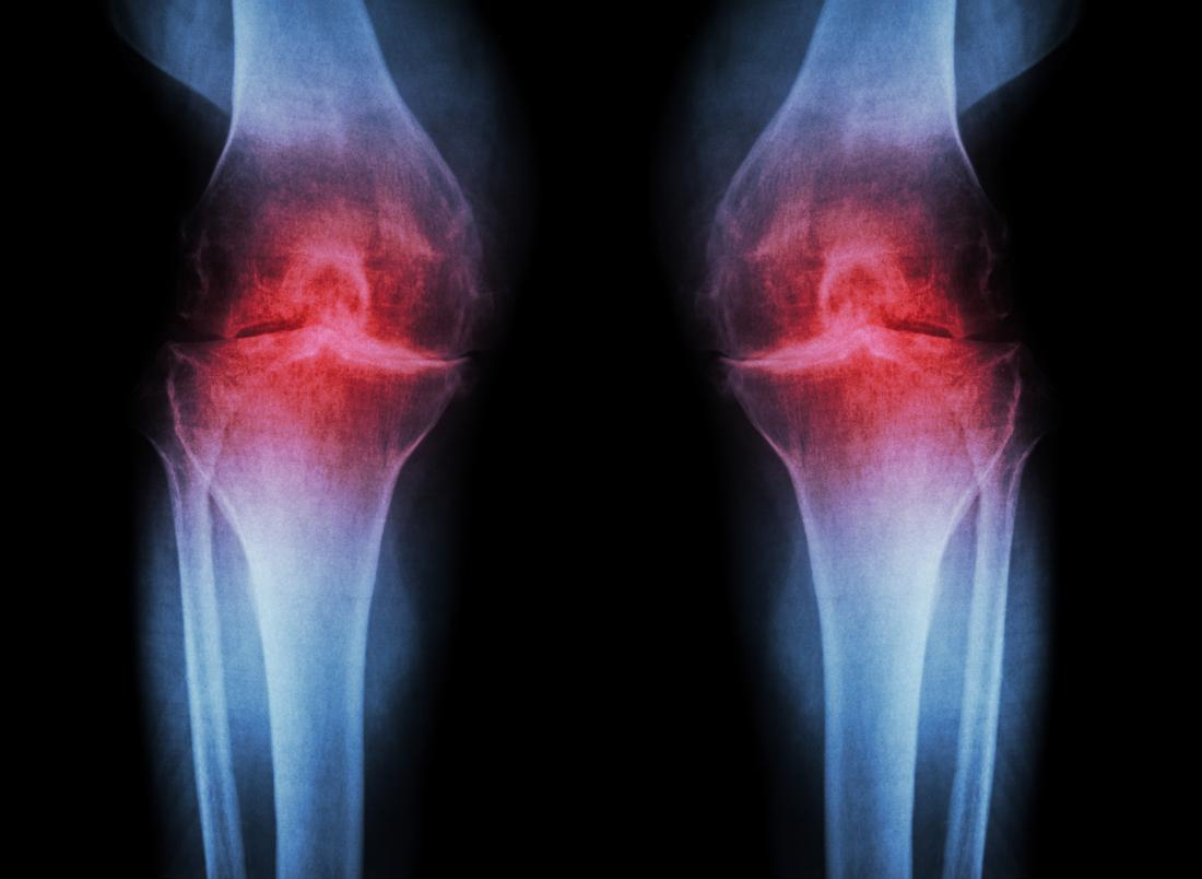osteoarthritis-of-the-knee.jpg