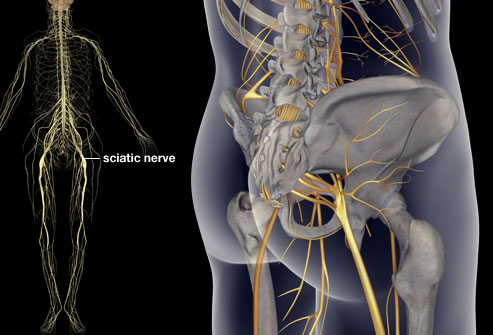 princ_rm_photo_of_sciatica_illustration.jpg